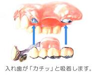 名古屋市 中区 歯科 歯医者 審美歯科