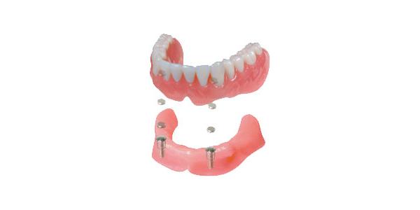 マグフイット®義歯