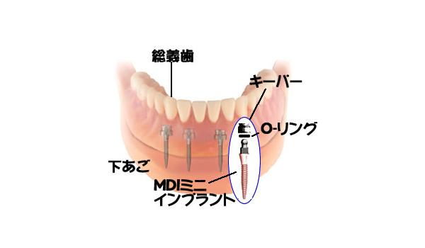 ミニインプラント®義歯